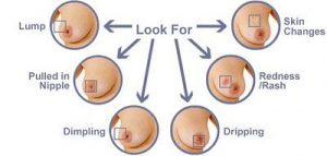 Let's be smart and learn how to self-examine breasts